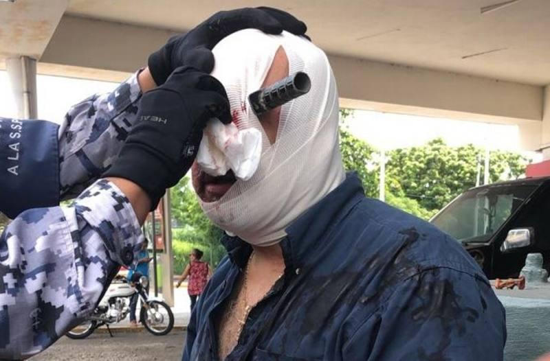 ¡Riña en Veracruz! Sujeto termina con un cuchillo clavado en el ojo